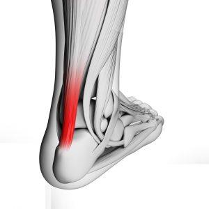 Tendinitis pada kaki
