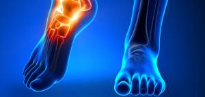 Infeksi tulang pada kaki