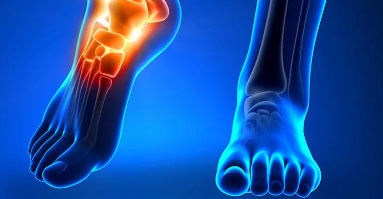 Menyepelekan Cidera Tulang (Osteomielitis), Berpotensi Diamputasi