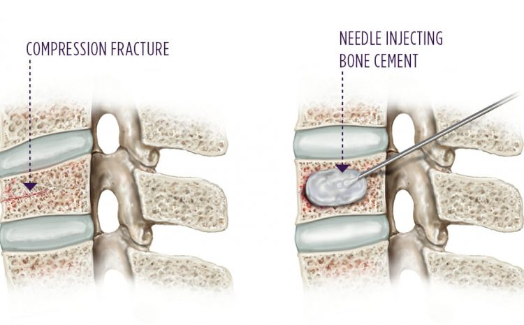 Kyphoplasty, Atasi Masalah Keropos Tulang Tanpa Operasi
