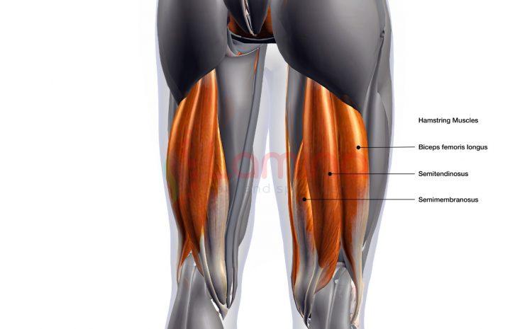 Cedera Hamstring Penyebabnya Apa?
