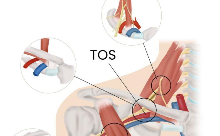 Thoracic Outlet Syndrome Adalah Penyebab Mati Rasa Pada Lengan