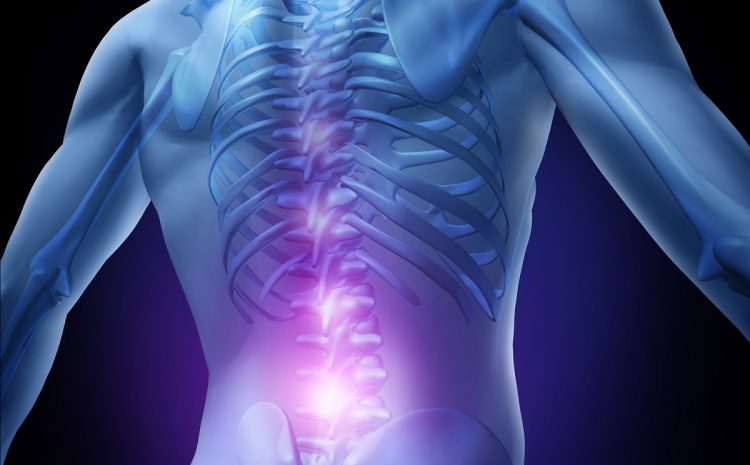 Low Back Pain Nyeri Pinggang Yang Mengganggu