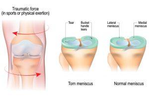 Cedera meniskus